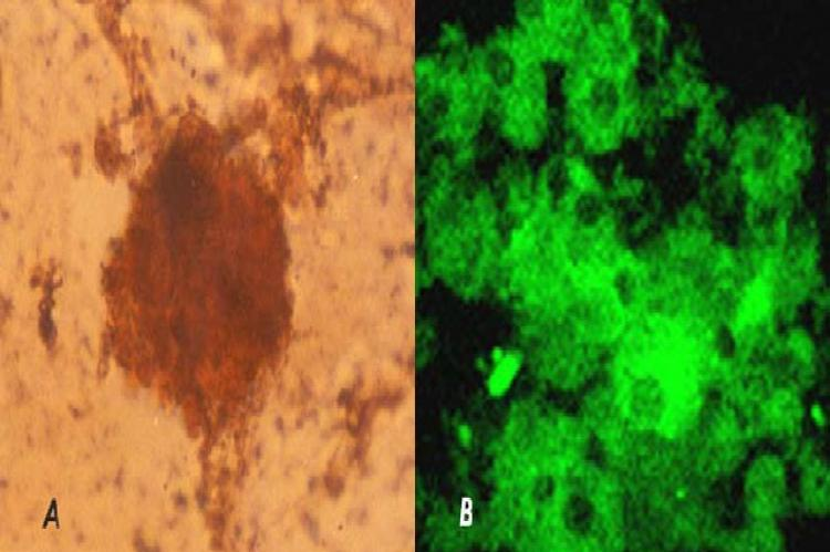 A: New islet generated from intra-islet precursor cells on treatment with PCCS