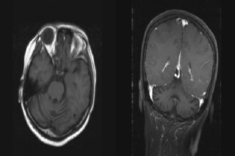 MRI images of the brain