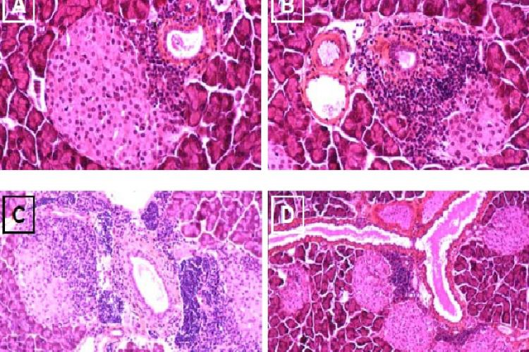 Different stages of insulitis in the pregnant NOD mouse