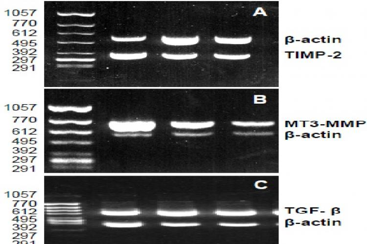 Electrophoresis of the RT-PCR products of TIMP-2