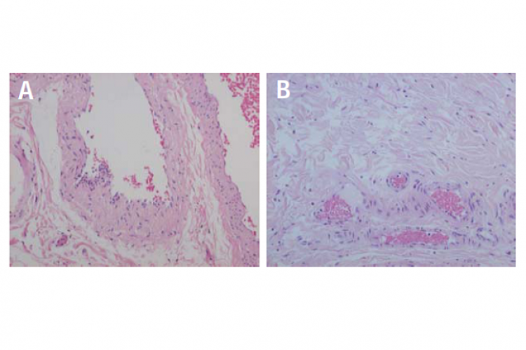 Microangiopathy in the arteriolar walls of the colonic submucosa.