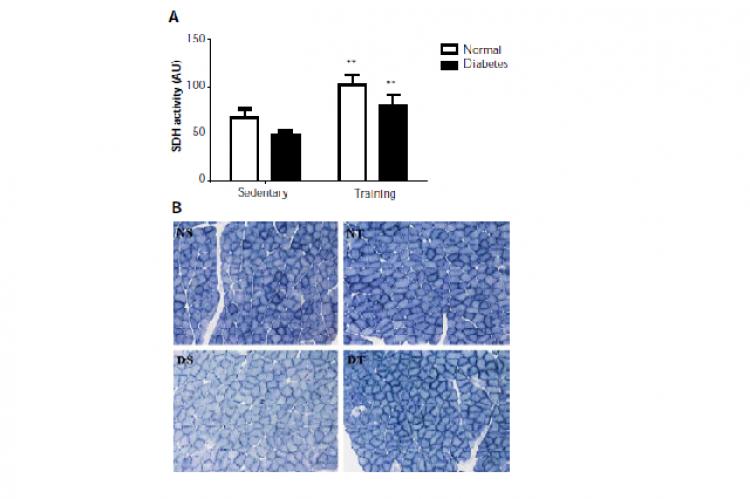 Succinate dehydrogenase (SDH) activities in soleus muscle.