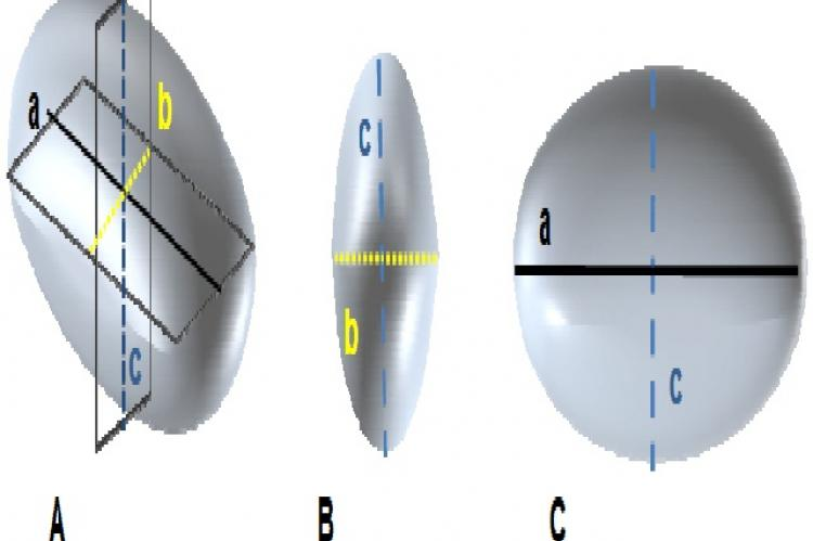 Basic diameters of islets