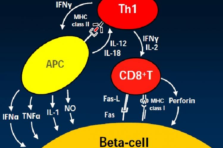 Hypothetical illustration of beta-cell destruction
