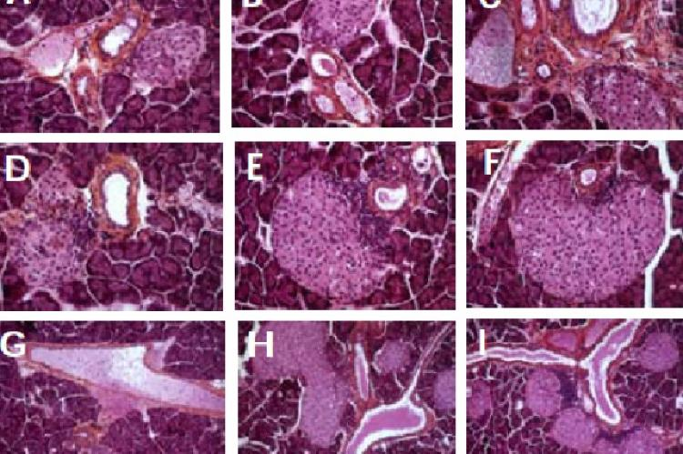 Hematoxylin-eosin staining of non-diabetic NOD dam pancreas sections one day after delivery