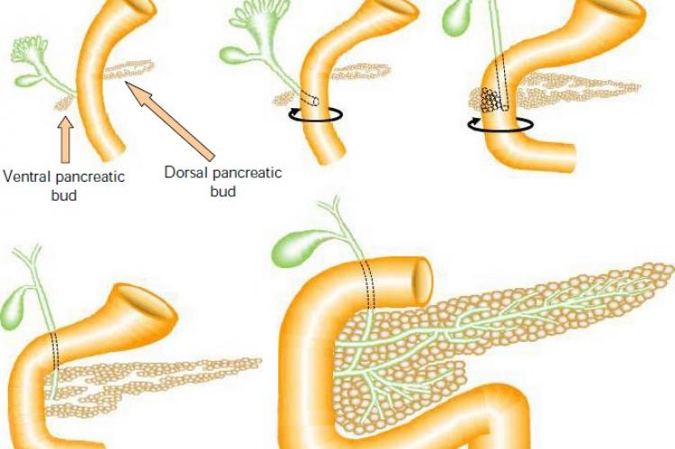 Schematic representation of pancreas development