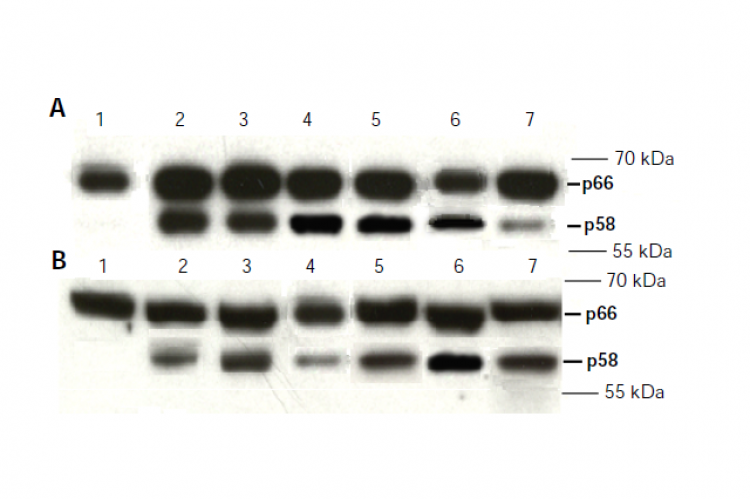 Western blot analysis of two IGFBP2 isoforms (p58 and p66) in the adipose tissue of obese T2D patients