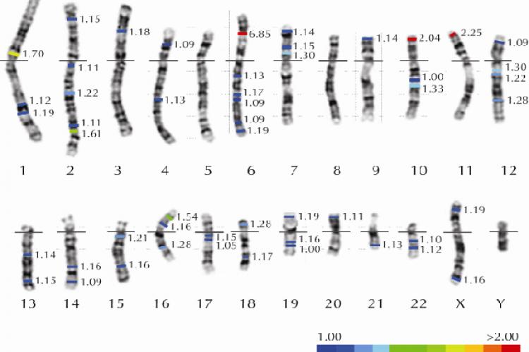 Karyotype illustrating major T1D loci