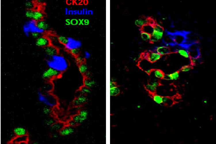 Immunostaining of neogenesis